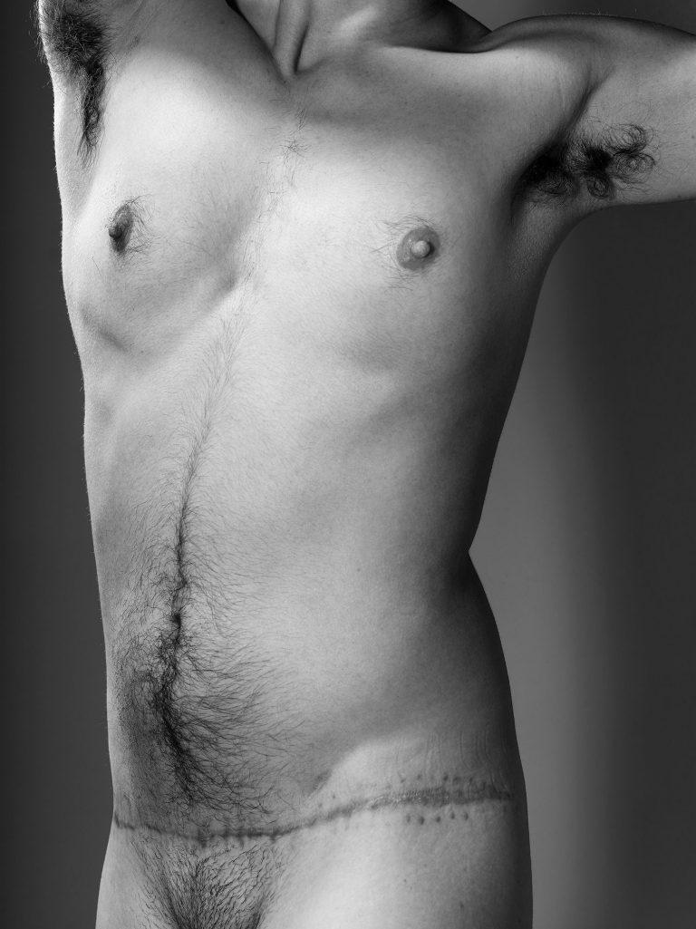 An einem männlichen Oberkörper ist im Bereich des Unterleibs eine Narbe zu sehen.