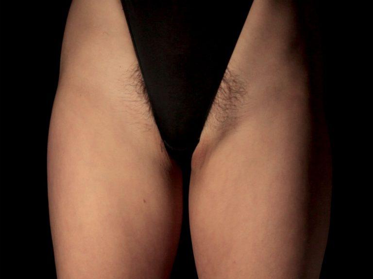 Eine Unterhose wird so weit hochgezogen, dass man den die behaarten Seiten eines weiblichen Intimbereichs sehen kann.